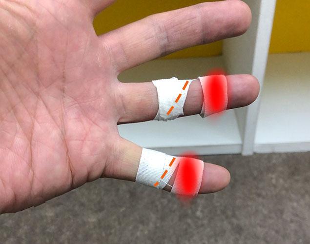 テーピング指2